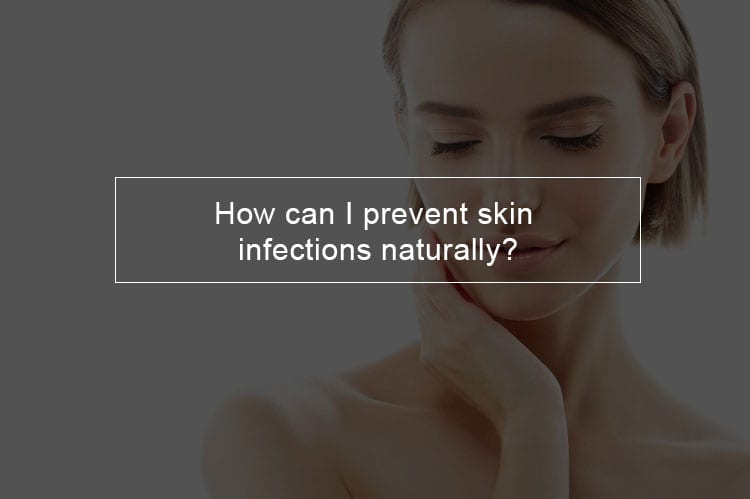 How can I prevent skin infections naturally