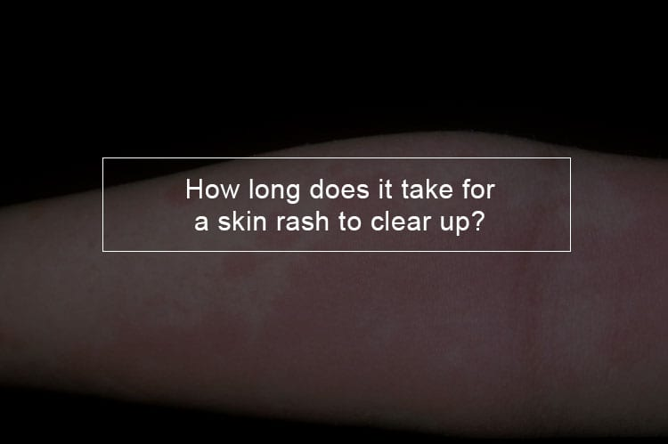 How long does it take for a skin rash to clear up