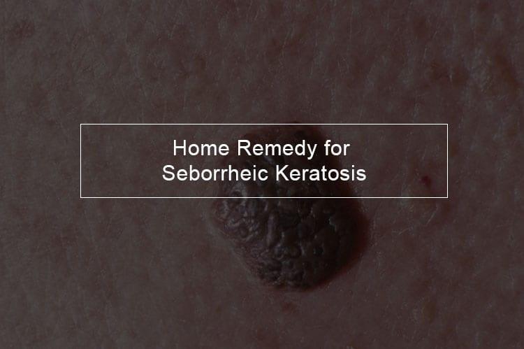 Home remedy for seborrheic keratosis