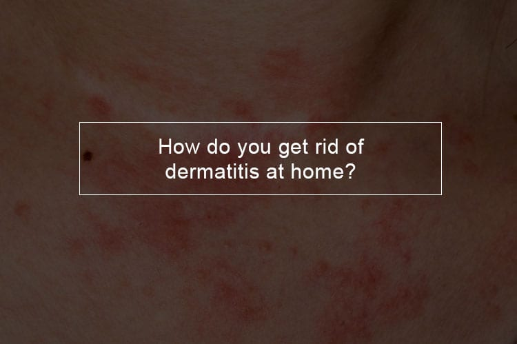 How do you get rid of dermatitis at home
